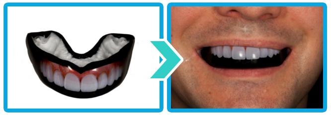 Chránič zubů na míru