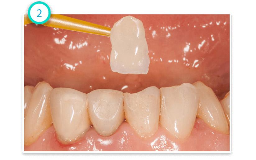 Zubní Korunky